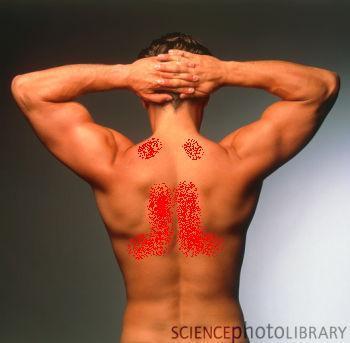 muskelknuter i ryggen