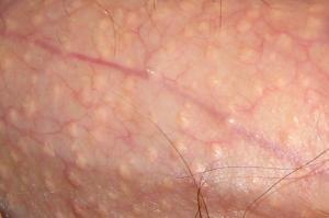 vgnet talgkjertler på penis