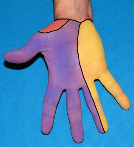 Smerter i fingerledd