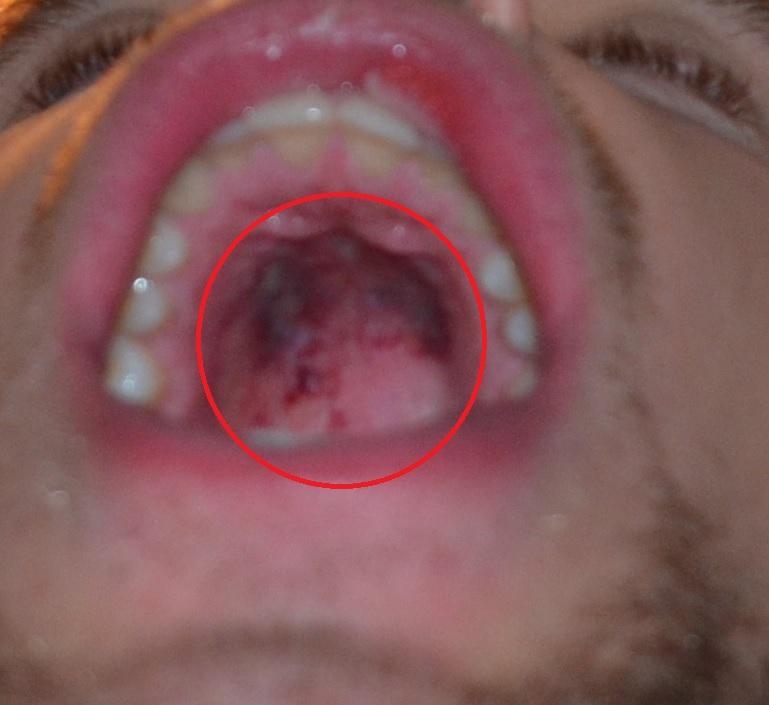 hvordan har manx sår i vagina