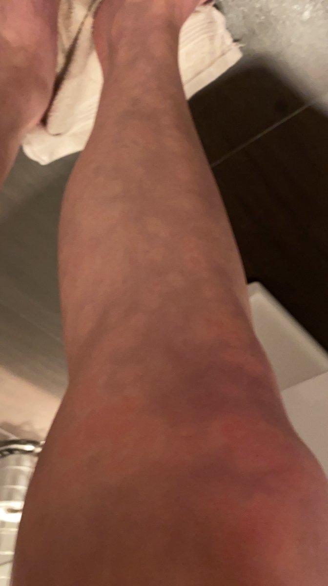 Klør røde der på knopper benene Varmeknopper (miliaria)